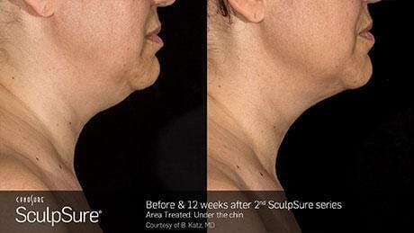 Non-Invasive Body Contouring Gallery - Patient 41897250 - Image 1