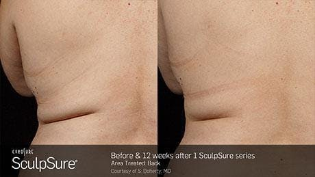 Non-Invasive Body Contouring Gallery - Patient 41897251 - Image 1