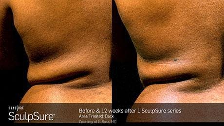 Non-Invasive Body Contouring Gallery - Patient 41897253 - Image 1