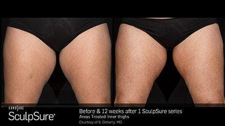 Non-Invasive Body Contouring Gallery - Patient 41897254 - Image 1