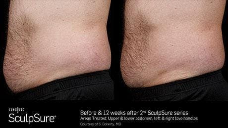 Non-Invasive Body Contouring Gallery - Patient 41897256 - Image 1