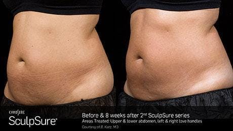 Non-Invasive Body Contouring Gallery - Patient 41897257 - Image 1