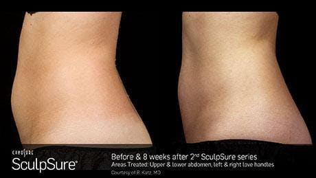 Non-Invasive Body Contouring Gallery - Patient 41897258 - Image 1
