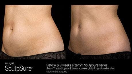 Non-Invasive Body Contouring Gallery - Patient 41897259 - Image 1
