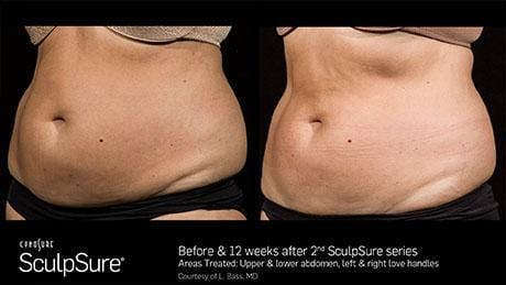 Non-Invasive Body Contouring Gallery - Patient 41897261 - Image 1