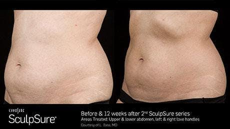 Non-Invasive Body Contouring Gallery - Patient 41897262 - Image 1