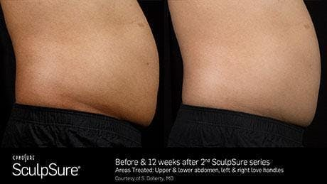 Non-Invasive Body Contouring Gallery - Patient 41897263 - Image 1
