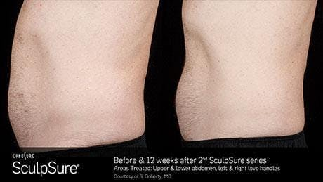 Non-Invasive Body Contouring Gallery - Patient 41897264 - Image 1