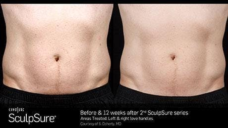 Non-Invasive Body Contouring Gallery - Patient 41897265 - Image 1