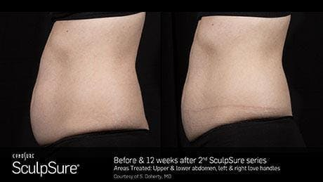 Non-Invasive Body Contouring Gallery - Patient 41897266 - Image 1