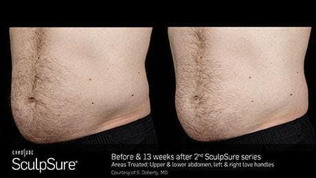 Non-Invasive Body Contouring Gallery - Patient 41897268 - Image 1