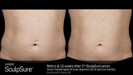 Non-Invasive Body Contouring Gallery - Patient 41897269 - Image 1