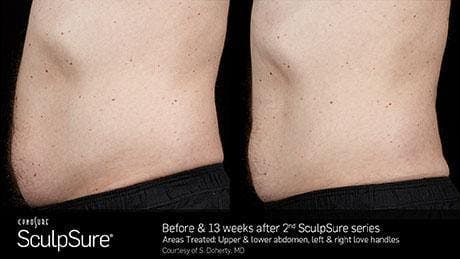 Non-Invasive Body Contouring Gallery - Patient 41897270 - Image 1