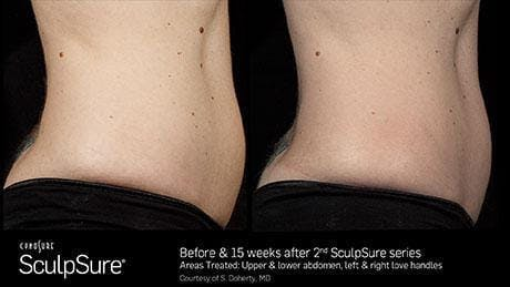 Non-Invasive Body Contouring Gallery - Patient 41897271 - Image 1