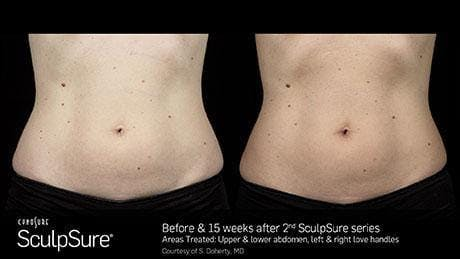 Non-Invasive Body Contouring Gallery - Patient 41897272 - Image 1