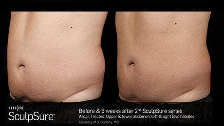 Non-Invasive Body Contouring Gallery - Patient 41897273 - Image 1