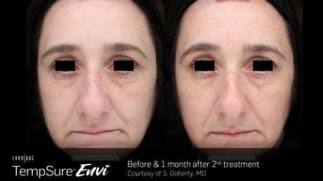 Skin Tightening Gallery - Patient 41897278 - Image 1