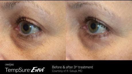 Skin Tightening Gallery - Patient 41897279 - Image 1
