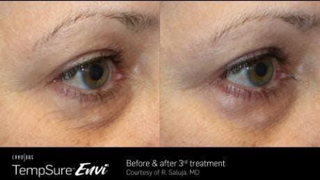 Skin Tightening Gallery - Patient 41897281 - Image 1