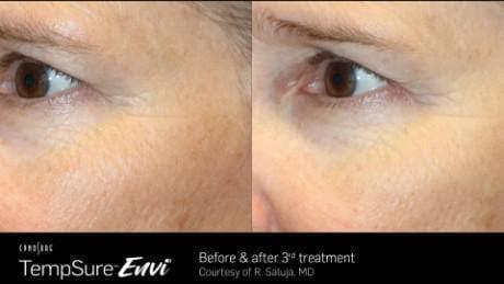 Skin Tightening Gallery - Patient 41897283 - Image 1