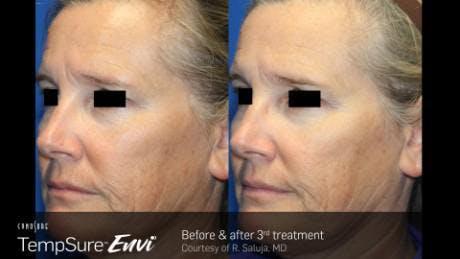 Skin Tightening Gallery - Patient 41897284 - Image 1