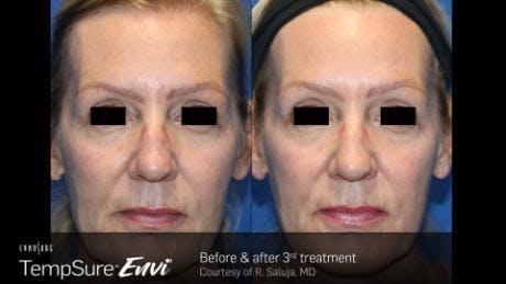 Skin Tightening Gallery - Patient 41897285 - Image 1