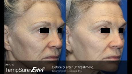 Skin Tightening Gallery - Patient 41897286 - Image 1