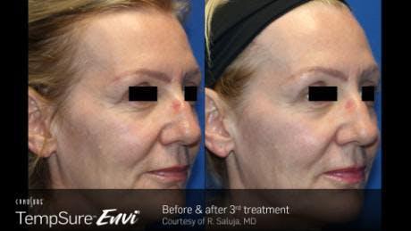 Skin Tightening Gallery - Patient 41897287 - Image 1