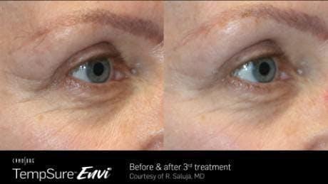 Skin Tightening Gallery - Patient 41897288 - Image 1