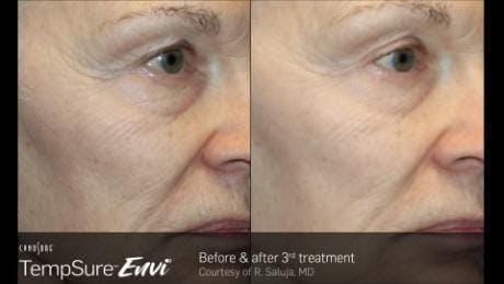 Skin Tightening Gallery - Patient 41897289 - Image 1