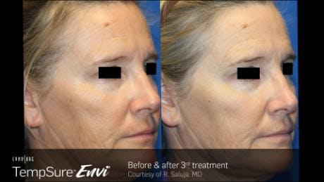 Skin Tightening Gallery - Patient 41897290 - Image 1