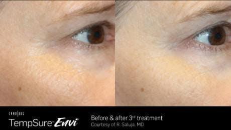 Skin Tightening Gallery - Patient 41897291 - Image 1