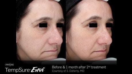 Skin Tightening Gallery - Patient 41897292 - Image 1