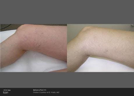 Skin Rejuvenation Gallery - Patient 41897301 - Image 1