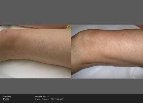 Skin Rejuvenation Gallery - Patient 41897302 - Image 1