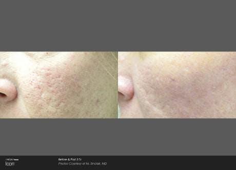 Skin Rejuvenation Gallery - Patient 41897303 - Image 1
