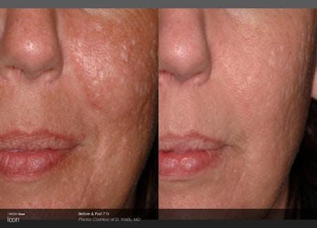 Skin Rejuvenation Gallery - Patient 41897304 - Image 1