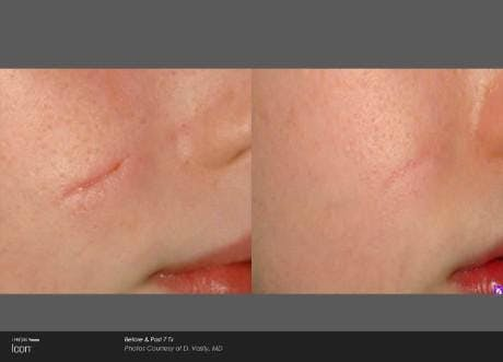 Skin Rejuvenation Gallery - Patient 41897305 - Image 1
