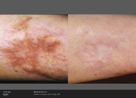 Skin Rejuvenation Gallery - Patient 41897306 - Image 1