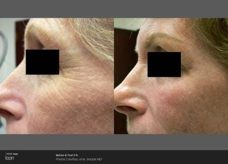 Skin Rejuvenation Gallery - Patient 41897307 - Image 1