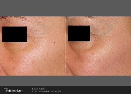 Skin Rejuvenation Gallery - Patient 41897308 - Image 1