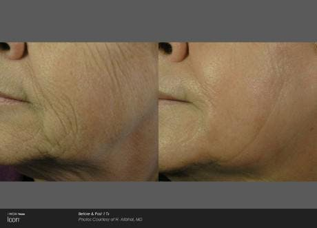 Skin Rejuvenation Gallery - Patient 41897309 - Image 1