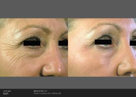 Skin Rejuvenation Gallery - Patient 41897310 - Image 1