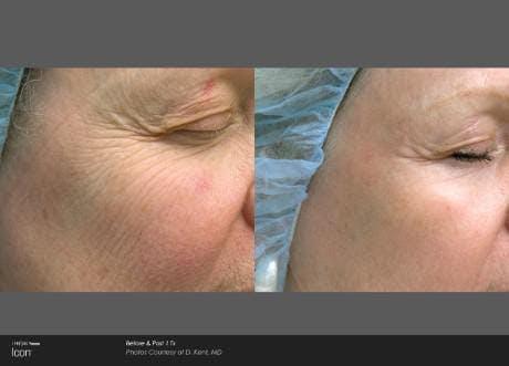 Skin Rejuvenation Gallery - Patient 41897311 - Image 1