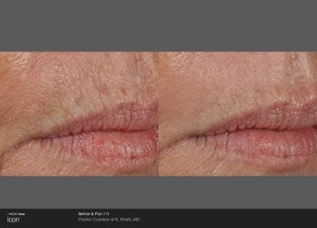 Skin Rejuvenation Gallery - Patient 41897312 - Image 1