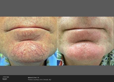 Skin Rejuvenation Gallery - Patient 41897313 - Image 1