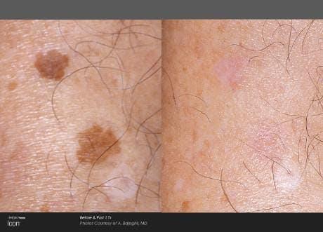 Skin Rejuvenation Gallery - Patient 41897314 - Image 1