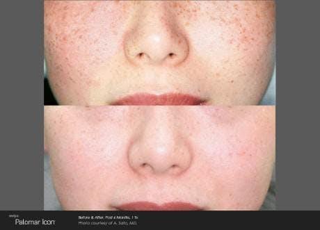 Skin Rejuvenation Gallery - Patient 41897315 - Image 1