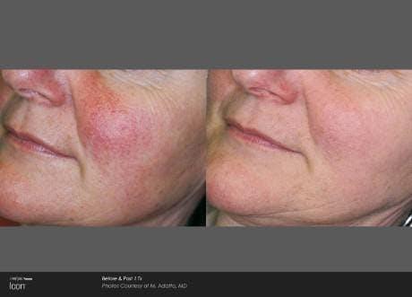 Skin Rejuvenation Gallery - Patient 41897316 - Image 1