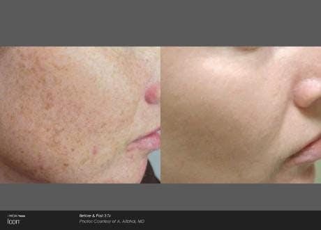 Skin Rejuvenation Gallery - Patient 41897317 - Image 1